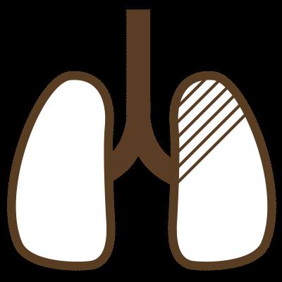 肺がんドック