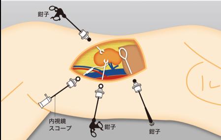 腹腔鏡手術および最新の手術泌尿器科腹腔鏡手術および最新の手術                泌尿器科
