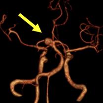 脳動脈瘤(頭部MRA)