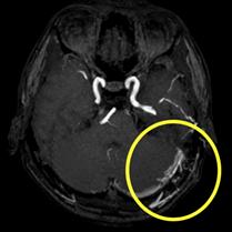 d-AVF治療前(頭部MRA)