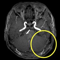 治療後(頭部MRA)