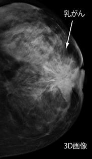 マンモグラフィ検査画像